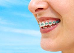 Metode Solvosis, Metode Alternatif Untuk Pembersihan Behel Gigi