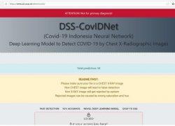 UI Kembangkan Alat Deteksi Pneunomia Akibat COVID-19 Berbasis Artificial Intelligent